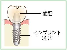 インプラントとは 歯冠、インプラント(ネジ)