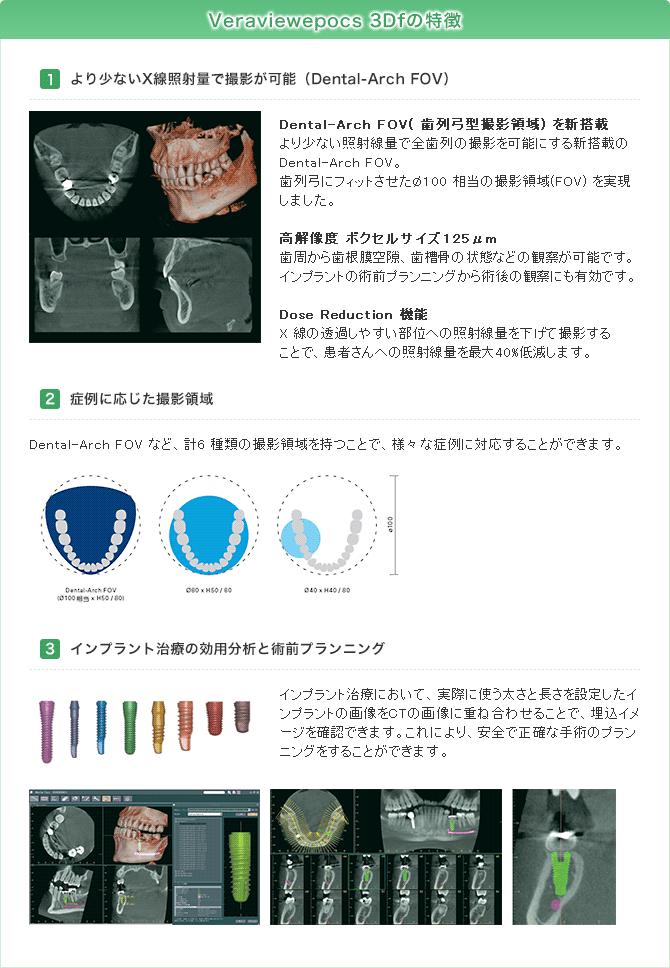 Veraviewepocs 3Dfの特徴:1.より少ないX線照射量で撮影が可能(Dental-Arch FOV) 2.症例に応じた撮影領域 3.インプラント治療の効用分析と術前プランニング
