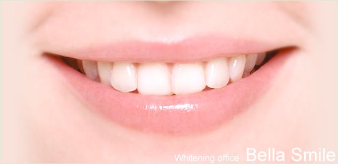 ホワイトニングオフィス Bella Smile